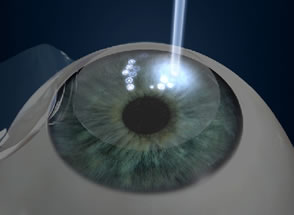 Lasik Eye Surgery Step 4