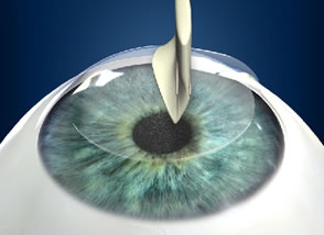 Lasik Eye Surgery Step 5