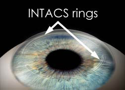 Intacs Rings