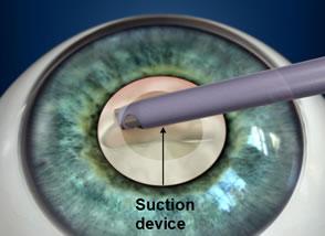 Cataract Operation Step 3